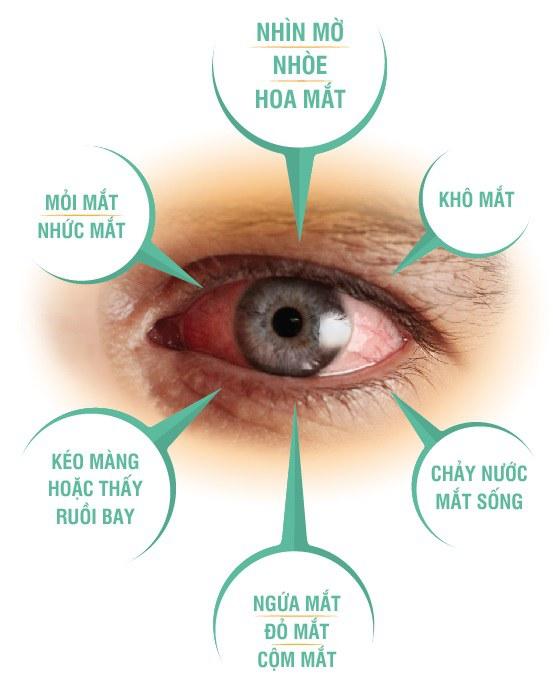 Triệu chứng nào cảnh báo bệnh mắt nguy hiểm 1