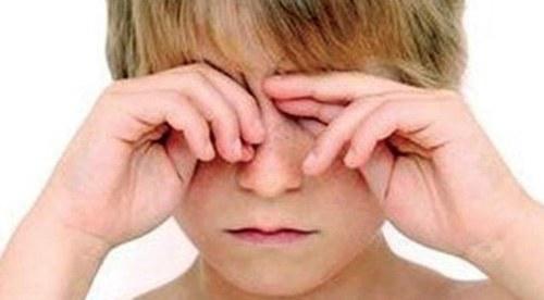 Chăm sóc và bảo vệ mắt sau phẫu thuật đục thủy tinh thể 2