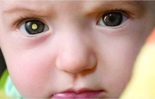 Điểm vàng hình thành trong mí mắt báo hiệu sự tích tụ chất béo và nồng độ cholesterol cao.