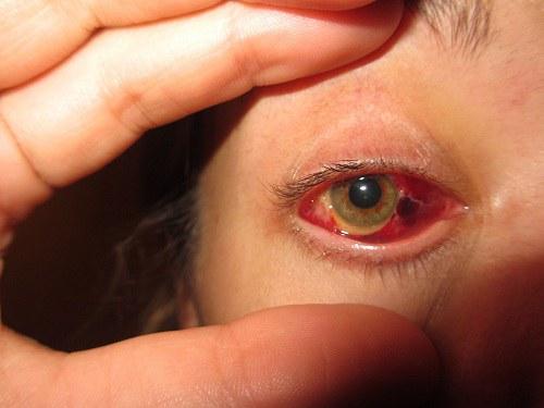 Những lưu ý trong chăm sóc mắt sau phẫu thuật bong võng mạc 1