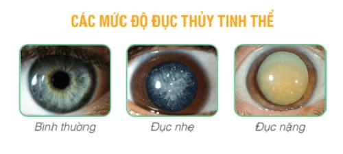 Tiêu chí chọn thuốc phòng ngừa và cải thiện đục thủy tinh thể 1