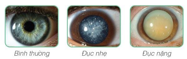 Mỏi mắt, nhức mắt, thấy chấm đen, nhìn lóa sáng… là bệnh gì 3