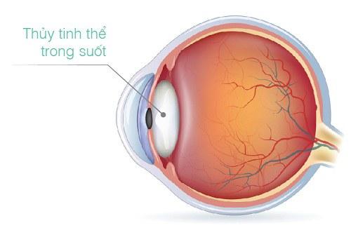 bảo vệ thủy tinh thể là một cách bảo vệ mắt