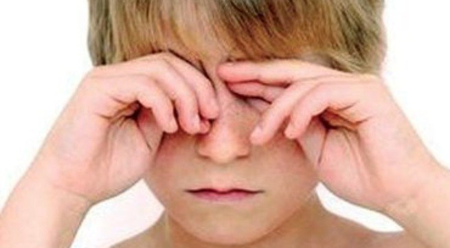 Cách vô cùng đơn giản tránh khô mắt